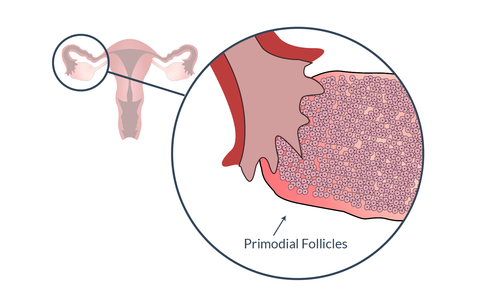 Primodial follicles