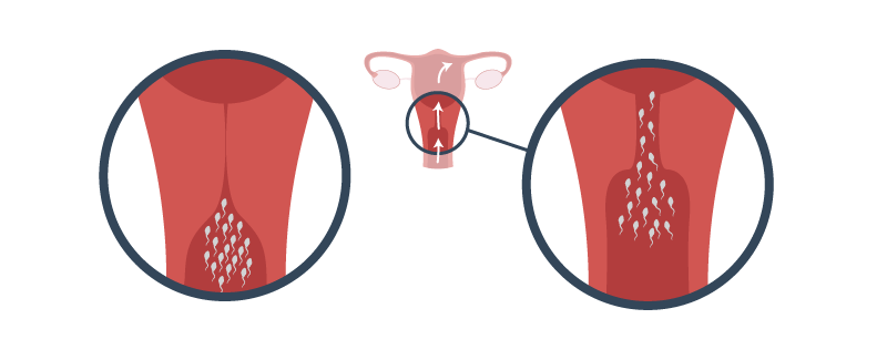 how to open your cervix to get pregnant