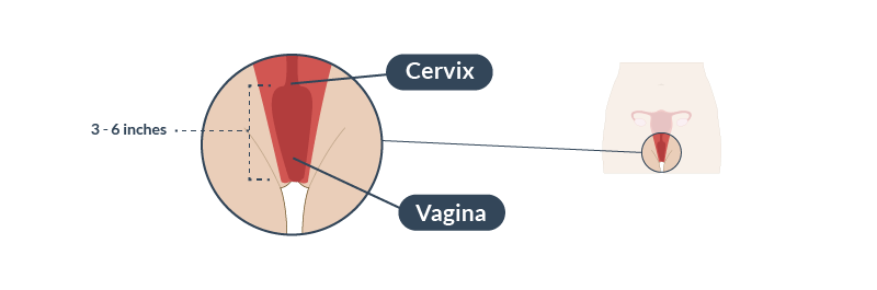 The cervix is the part of the uterus that opens into the vagina