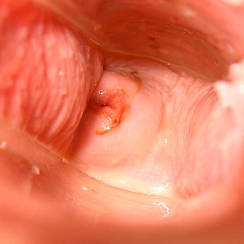 Cervix Day 33