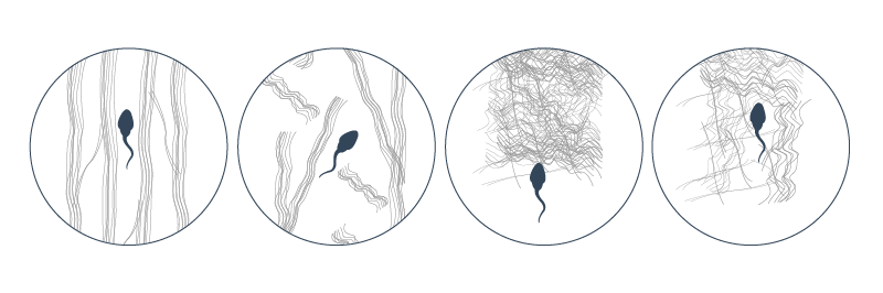 Structure of cervical mucus presents a barrier to sperm